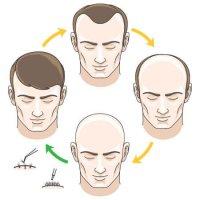 ریزش مو وکتور 12